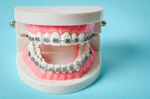 A model of dental braces in tx sits in a dentist's office