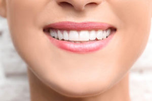 a woman smiles revealing dental bonding in sharpstown tx