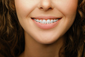 Closeup of orthodontics treatment for female